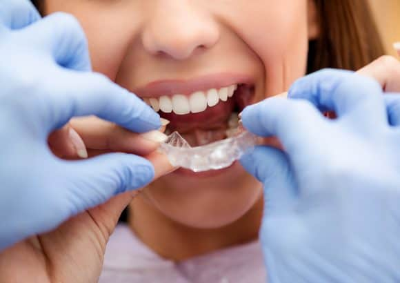 Teeth Alignment. With Invisalign