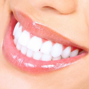 Laser Teeth Whitening with New Equipment
